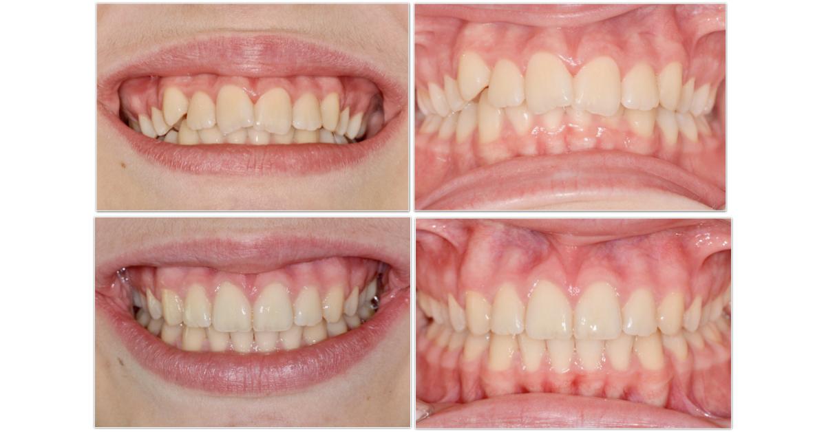 online comprare colore veloce Trattamenti ortodontici adolescenti 12 - 18 anni
