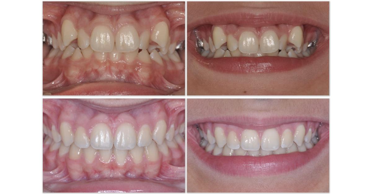 agenesia denti da latte mix