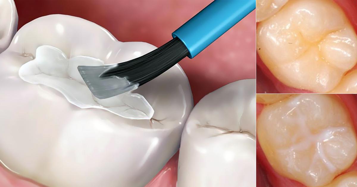 sigillatura dei denti