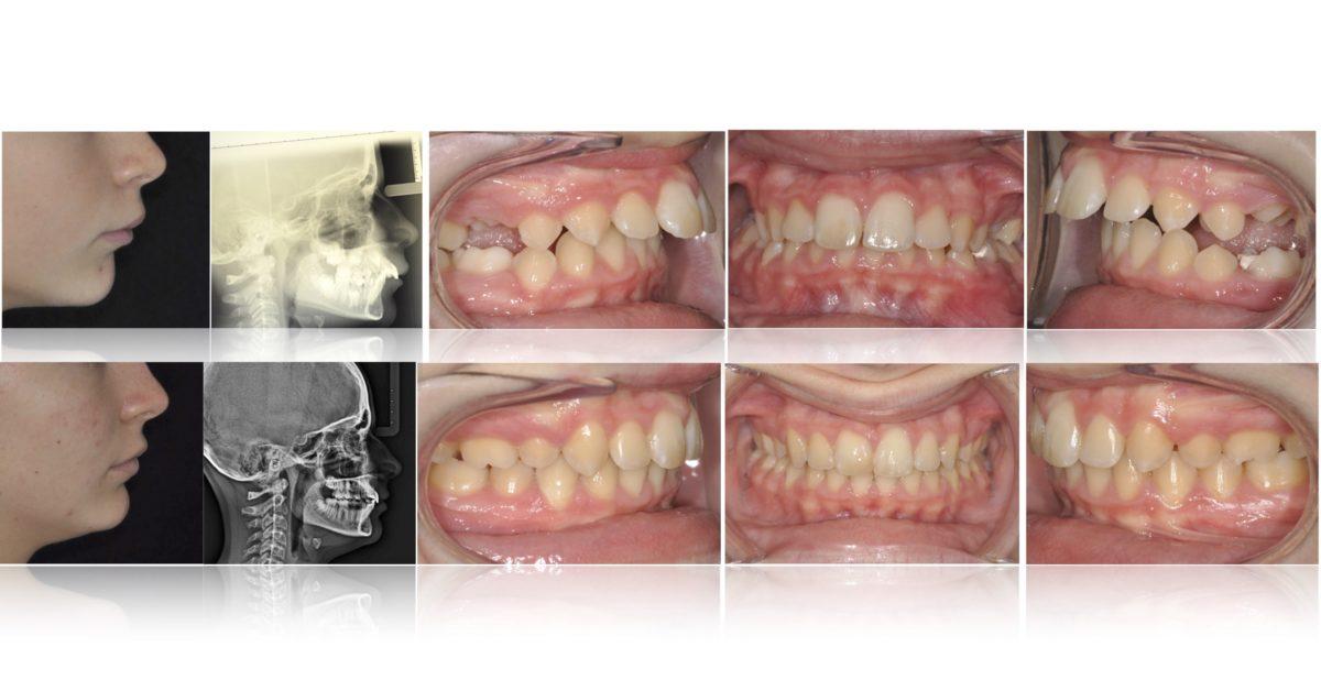 denti infuori